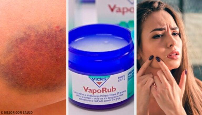 11 Surprising Uses for the Famous Vicks VapoRub