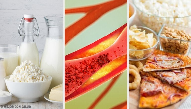 Foods that Clog Your Arteries