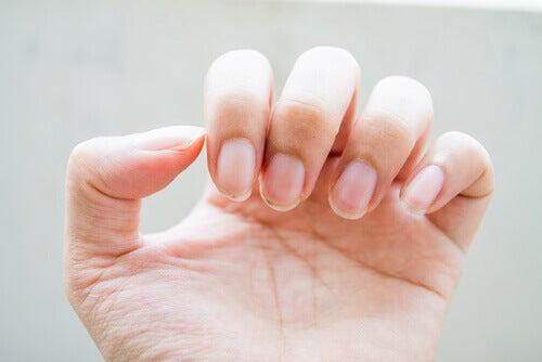 Knaekkede negle