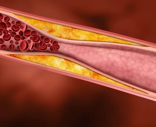 Cholesterol forming in the blood
