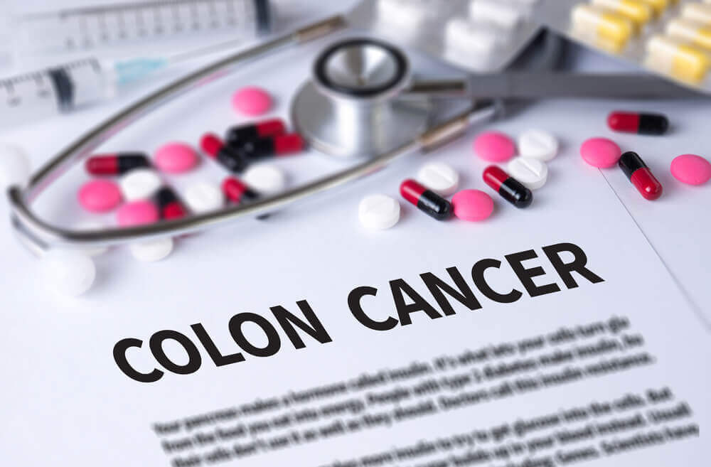 Treating colon cancer