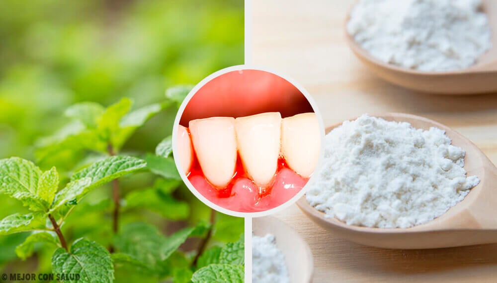 5 Effective Home Remedies for Gingivitis