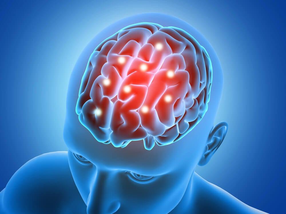 Cerebral health