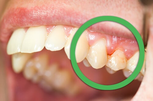 Gingivitis of the gums