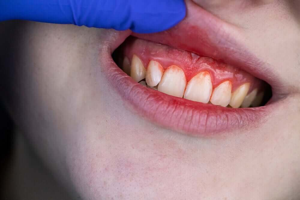 A person with swollen and bleeding gums.