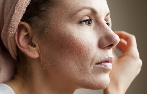 Worried woman looking at her skin and how it's affected by high cortisol levels