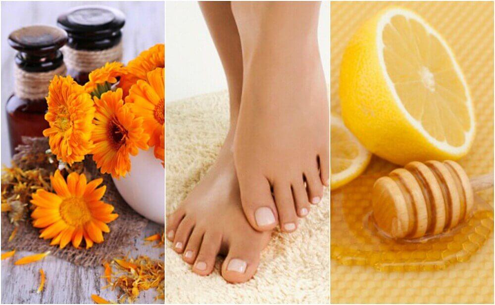 5 Natural Remedies to Treat Ingrown Nails