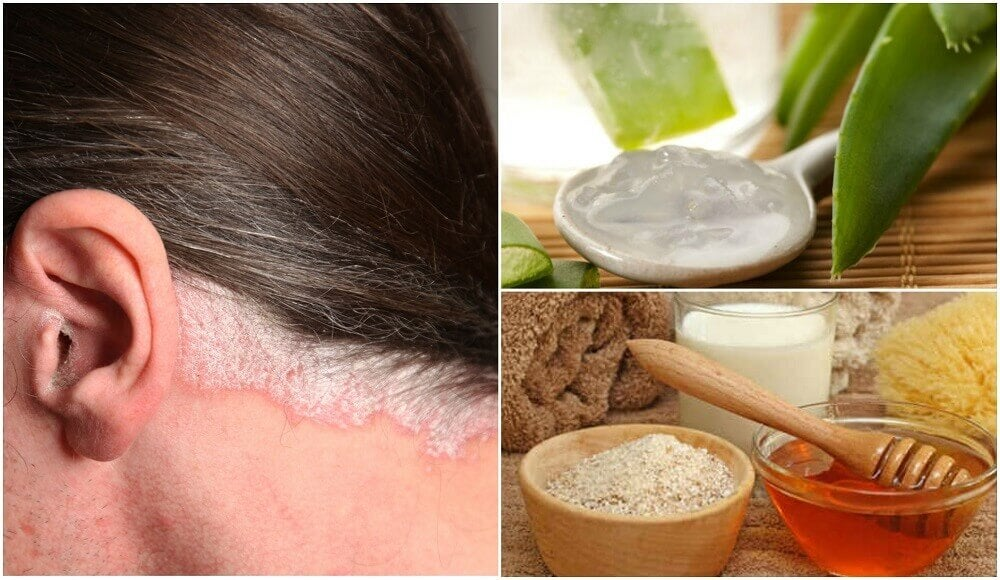 5 Home Remedies for Psoriasis of the Scalp