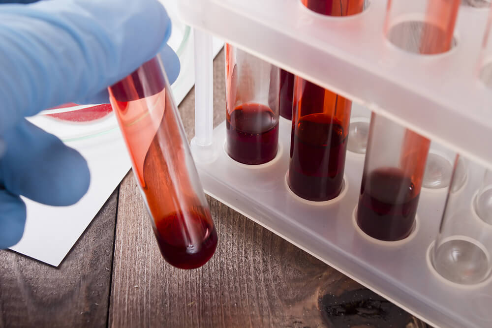 A blood test helps detect cancer in its initial phase