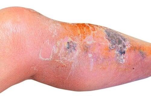 A leg with erysipelas.