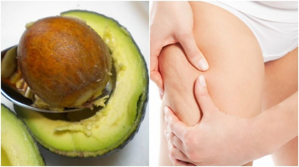 How to Use Avocado Seeds to Treat Cellulite