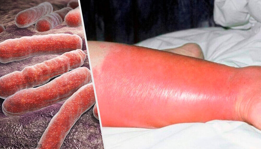 Erysipelas Infection Problems And Solutions Step To Health