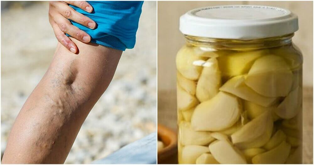 Garlic and Orange as Treatment for Varicose Veins