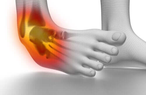 6 Tips To Prevent And Treat Ankle Sprains