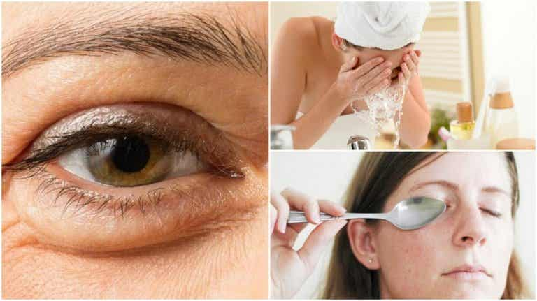 6 Natural Methods to Reduce Under Eye Bags