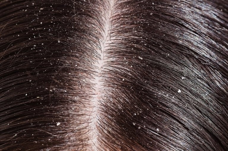 A head of hair with dandruff.