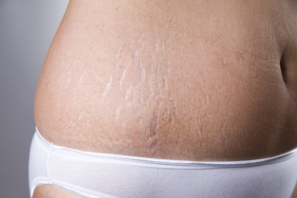 Stretch mark fighting cream