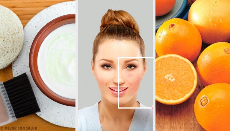 Incredible Natural Ways to Get Rid of Skin Blemishes