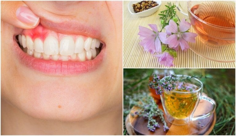 5 Natural Home Remedies for Gingivitis