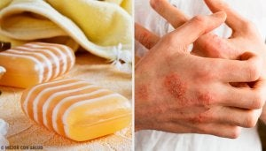 Homemade Glycerin, Propolis, and Clay Soap for Dermatitis
