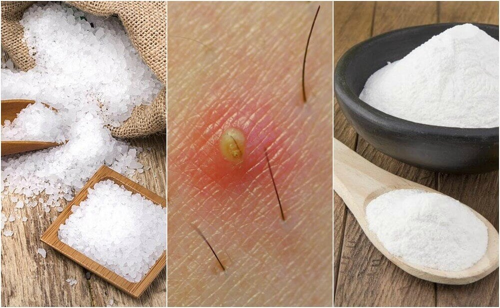5 Natural Solutions for Ingrown Hairs