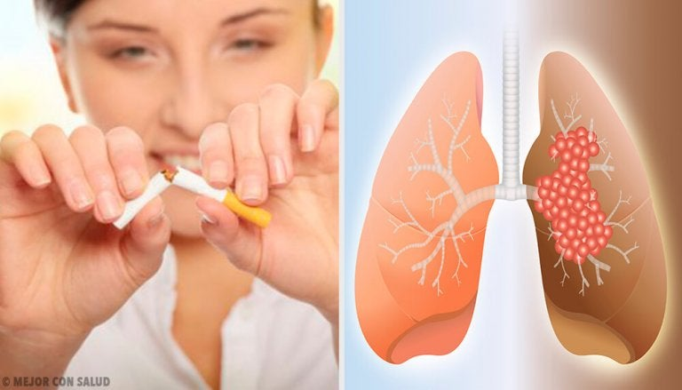 The Causes and Diagnosis of Lung Cancer