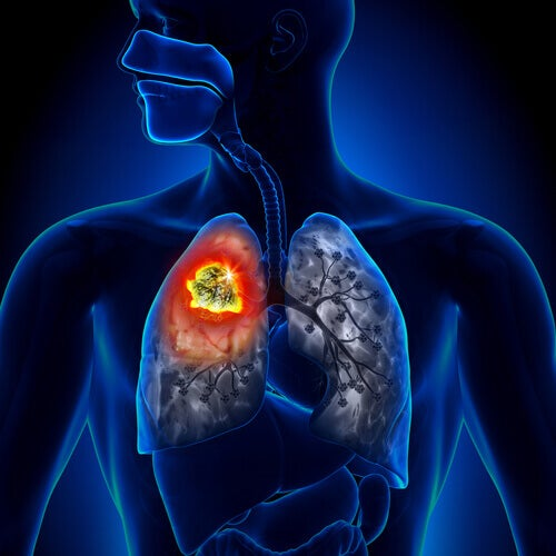 Types of lung cancer