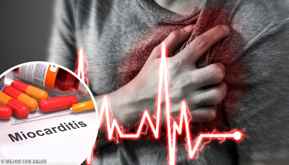 What is Myocarditis?