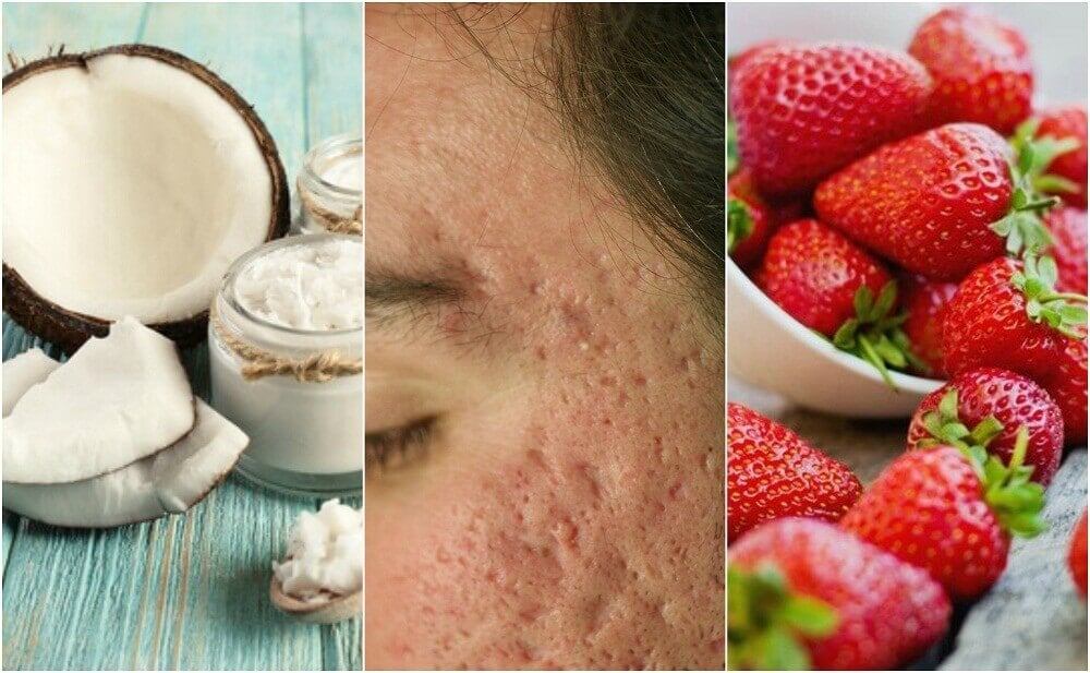 5 Homemade Treatments to Reduce Acne Scars