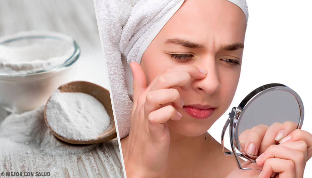 Four Baking Soda Masks for Removing Blackheads