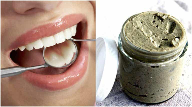 How to Treat and Prevent Cavities the 100% Natural Way