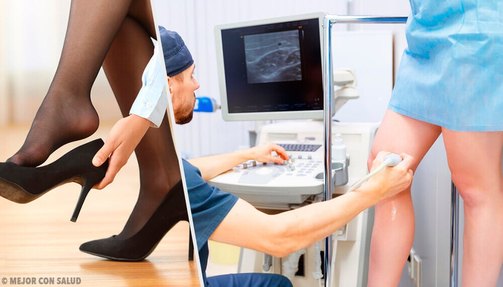 neuromulitivită și vene varicoase urmăriți tratamentul varicose picior