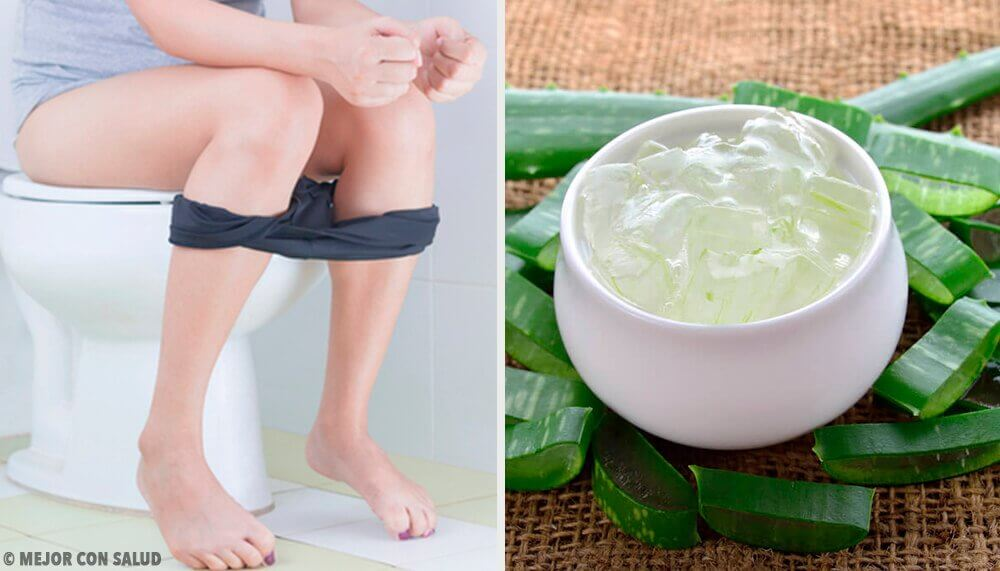 Treatment for Hemorrhoids