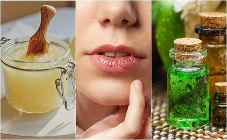 How to Prevent and Treat Chapped Lips