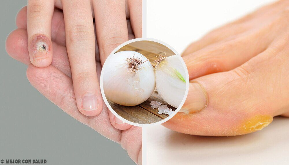 Naturally Remove Calluses from Hands and Feet