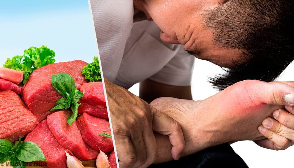 7 Foods that Increase Uric Acid Levels