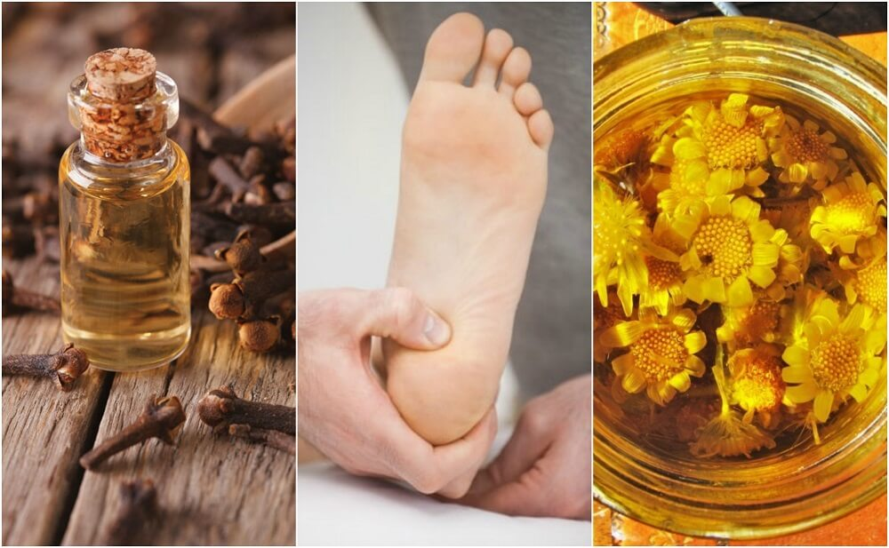 How to Relieve Heel Pain with 6 Natural Remedies