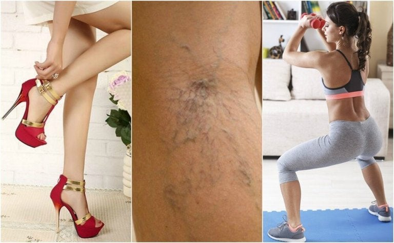 10 Tips To Help You Avoid Varicose Veins