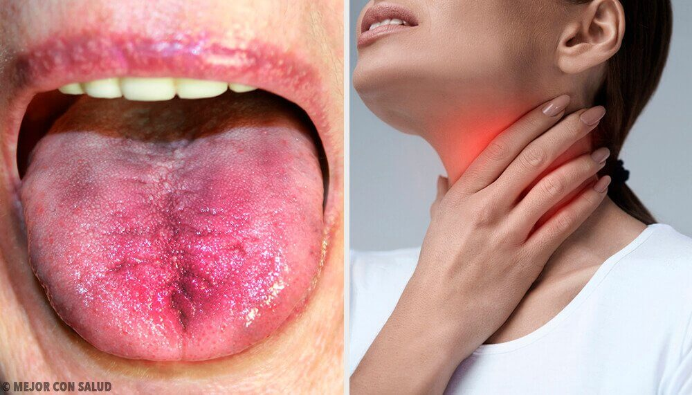 6 Ways To Know If There Is Plaque In Your Throat
