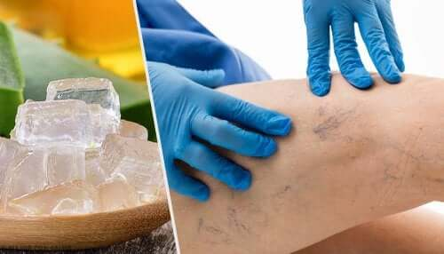 Five Alternative Treatments for Varicose Veins