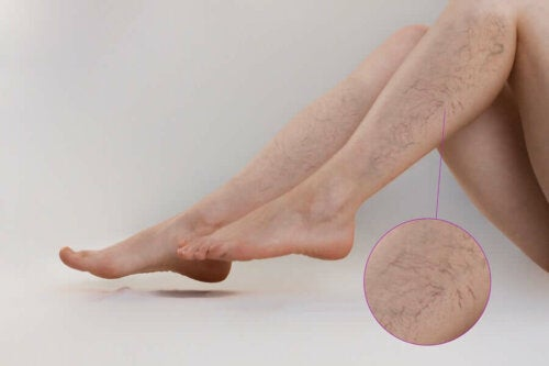 A person that needs some alternative treatments for varicose veins.