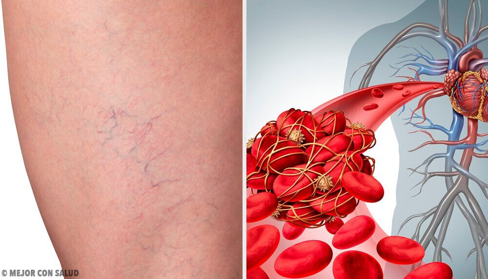 The 3 Best Home Remedies for Phlebitis