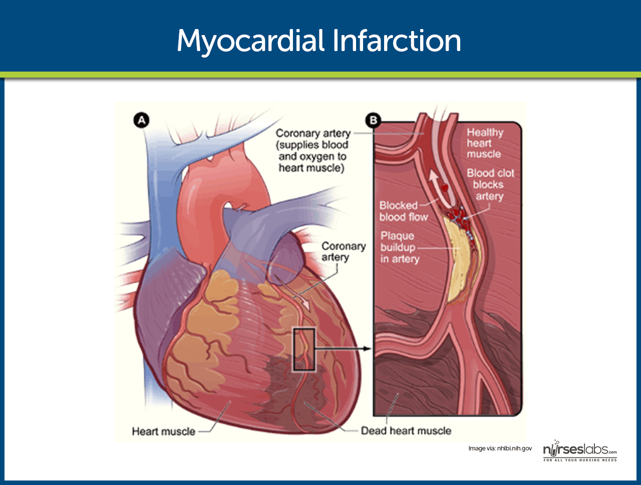 heart with myocardial infarction