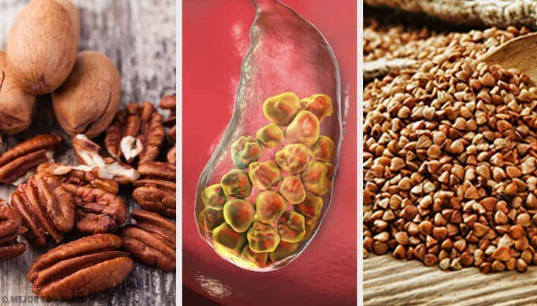 6 Foods to Help Fight Gallstones