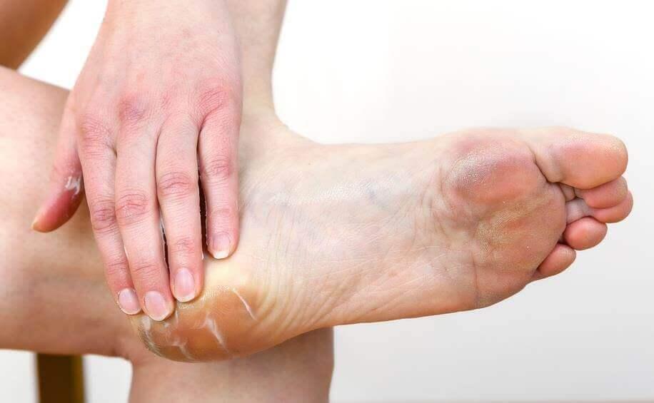 Avoid rubbing by using moisturiser