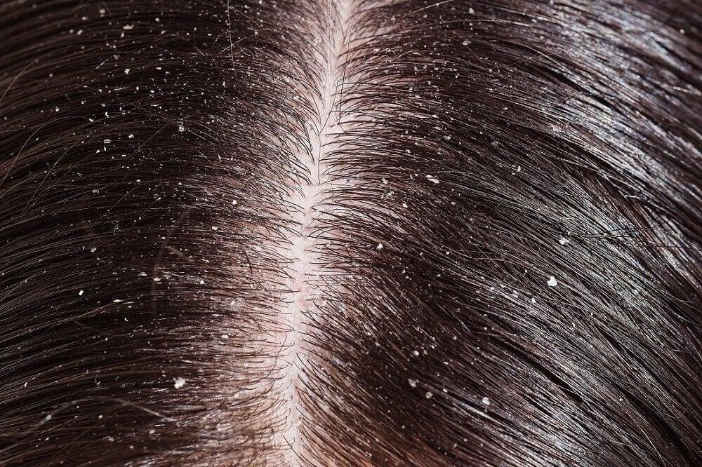 Dandruff on scalp