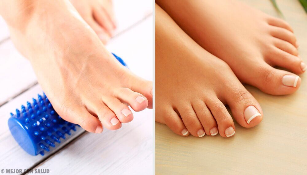 Foot exercises to remove bunions