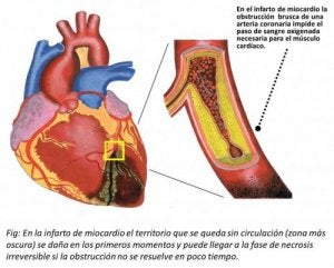 inside of heart with myocardial infarction