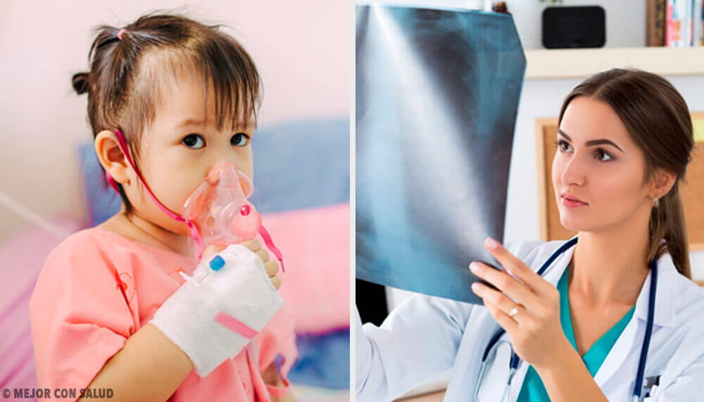 Everything You Need to Know About Treating Pneumonia