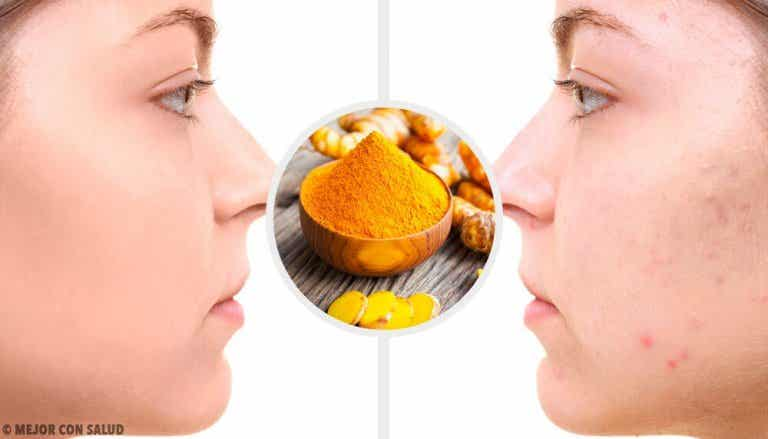 5 Turmeric Masks for Acne Scars